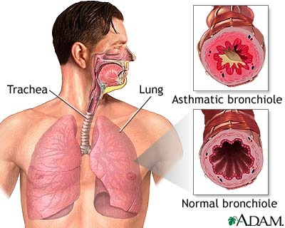 Nursing Care Plan for Bronchial Asthma